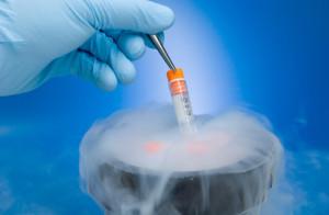 criogenia 2