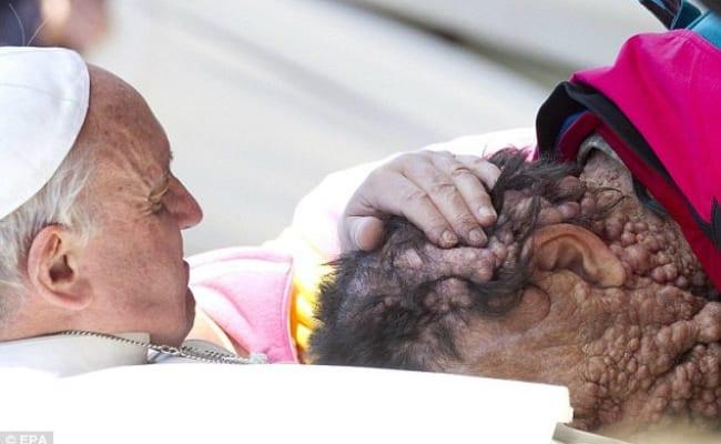 suveranul pontif a îmbrăţişat  un om plin de negi