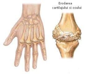 artrită