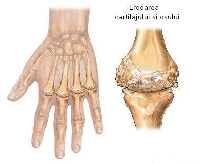 poate răni articulațiile în timpul menopauzei artrita reumatoidă a tuturor articulațiilor