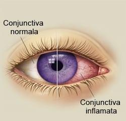 Conjunctivita sau ochiul roșu