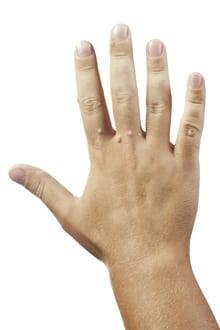 negi pe degetele de la maini