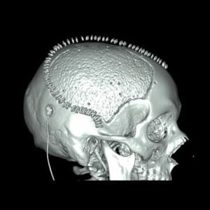 trepanatie-wegens-een-ernstige-hersentrauma