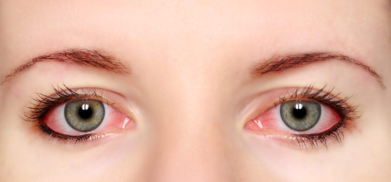 îndepărtați grăsimea ochilor pierzi mai întâi în greutate sau în centimetri