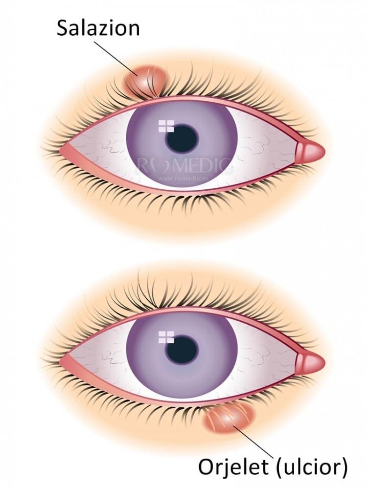 Muște strălucitoare în fața ochilor