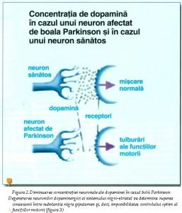 Parkinson poya 3
