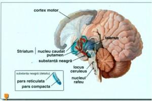 Parkinson poza 2