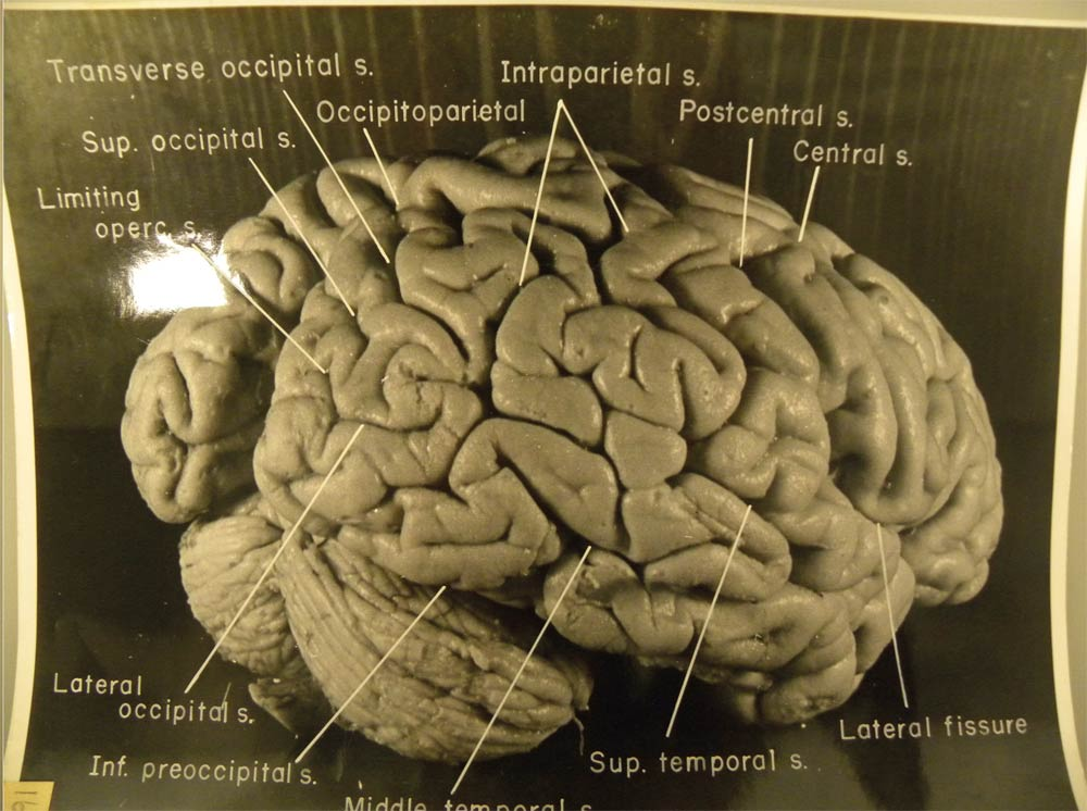 fig4-right-einstein-brain