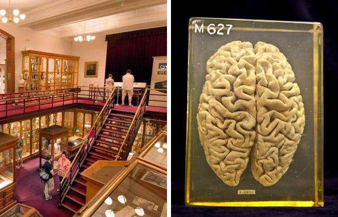 mutter-museum-comp-680uw