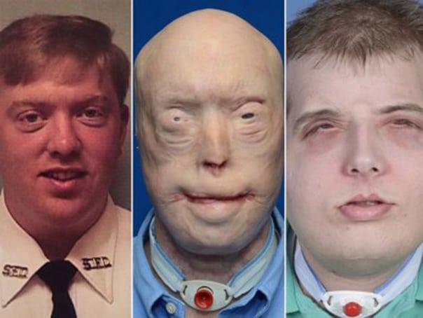 most-extensive-face-transplant-ever-emerge-businessinsider